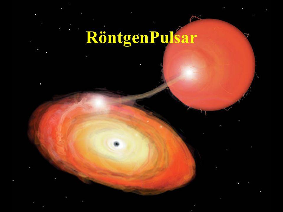 RöntgenPulsar