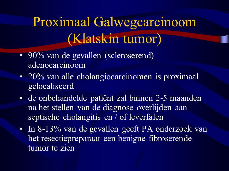 Proximaal Galwegcarcinoom (Klatskin tumor)