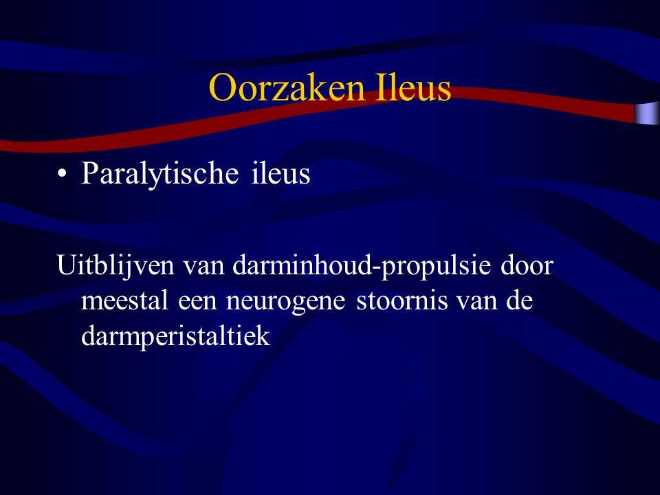 Oorzaken Ileus Paralytische ileus