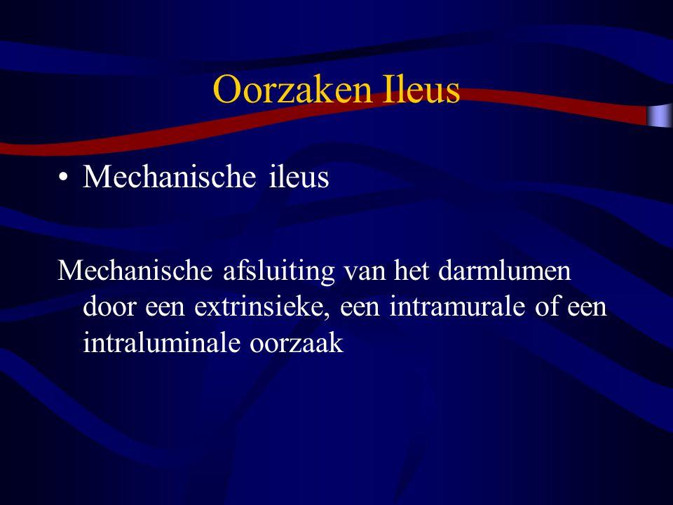 Oorzaken Ileus Mechanische ileus