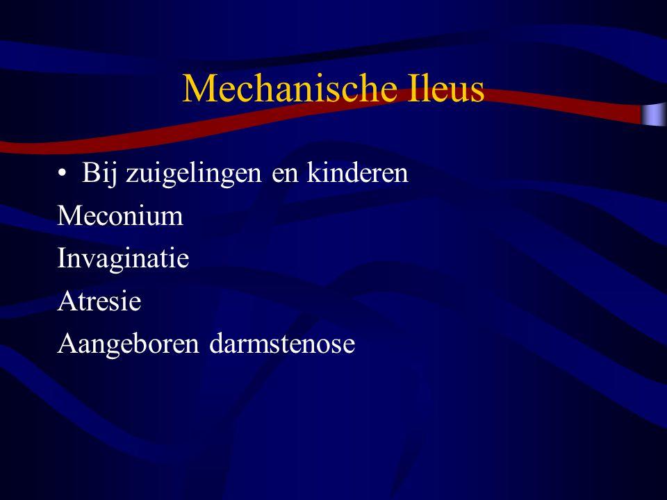 Mechanische Ileus Bij zuigelingen en kinderen Meconium Invaginatie