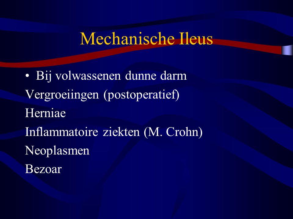 Mechanische Ileus Bij volwassenen dunne darm