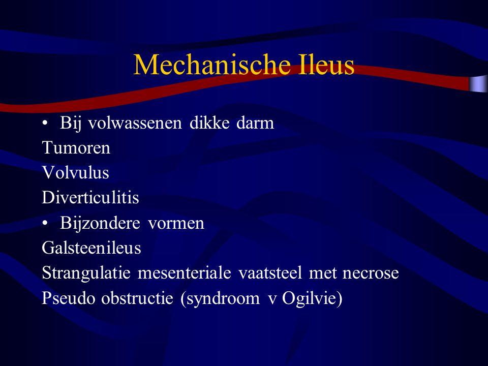 Mechanische Ileus Bij volwassenen dikke darm Tumoren Volvulus