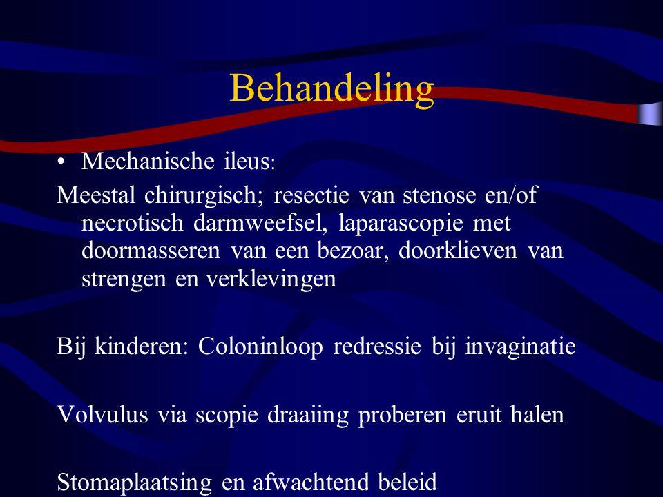 Behandeling Mechanische ileus: