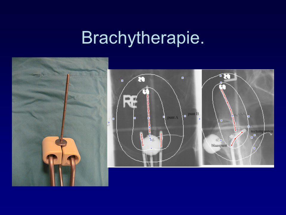 Brachytherapie.