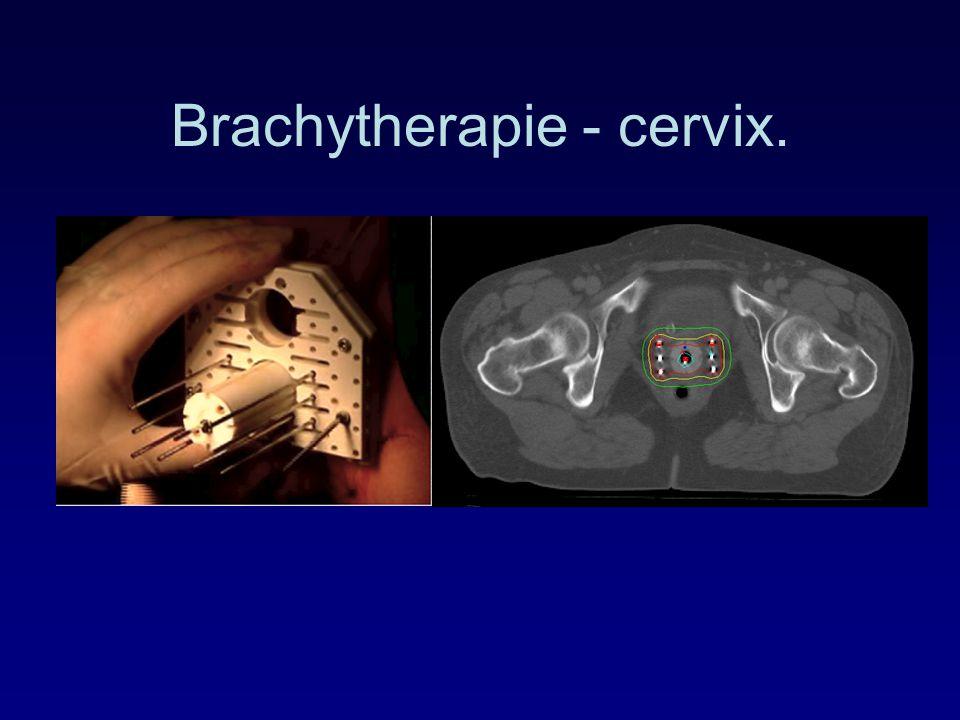 Brachytherapie - cervix.