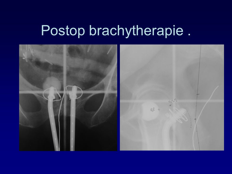 Postop brachytherapie .