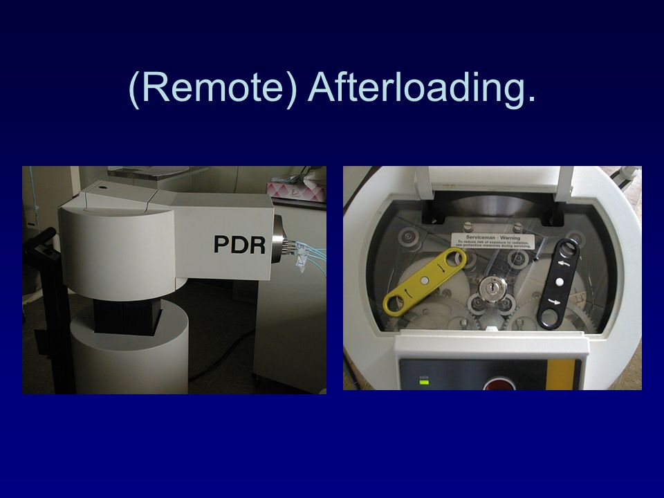 (Remote) Afterloading.