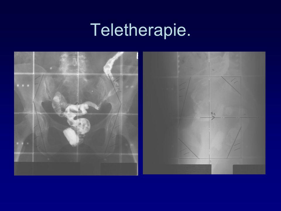 Teletherapie.
