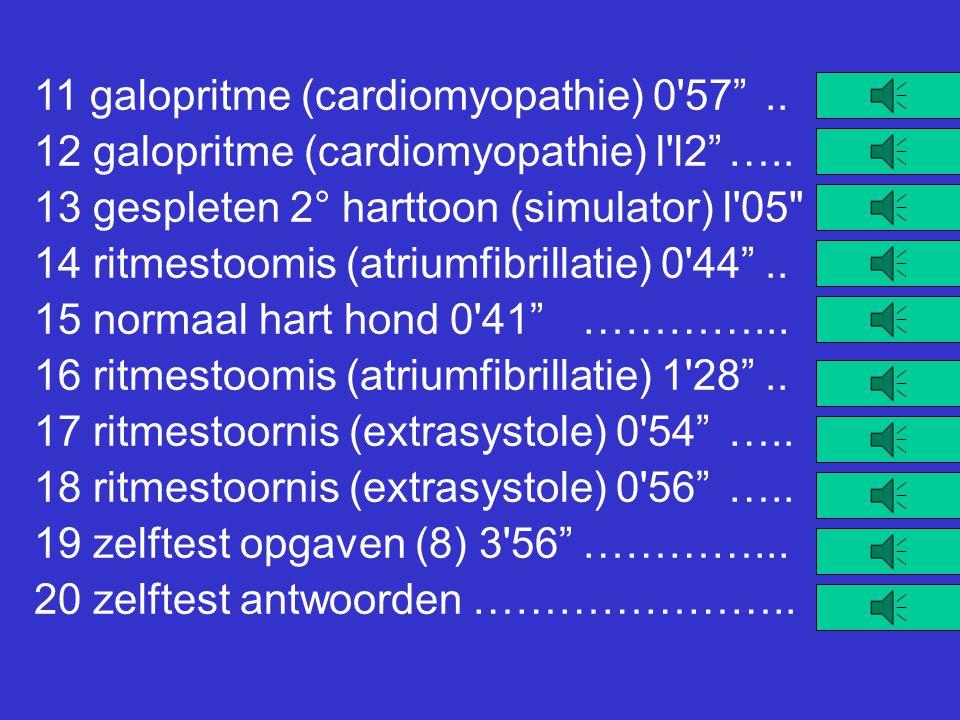 11 galopritme (cardiomyopathie) 0 57 ..