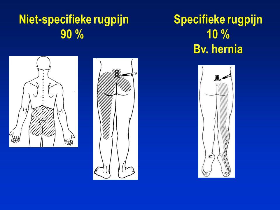 Niet-specifieke rugpijn