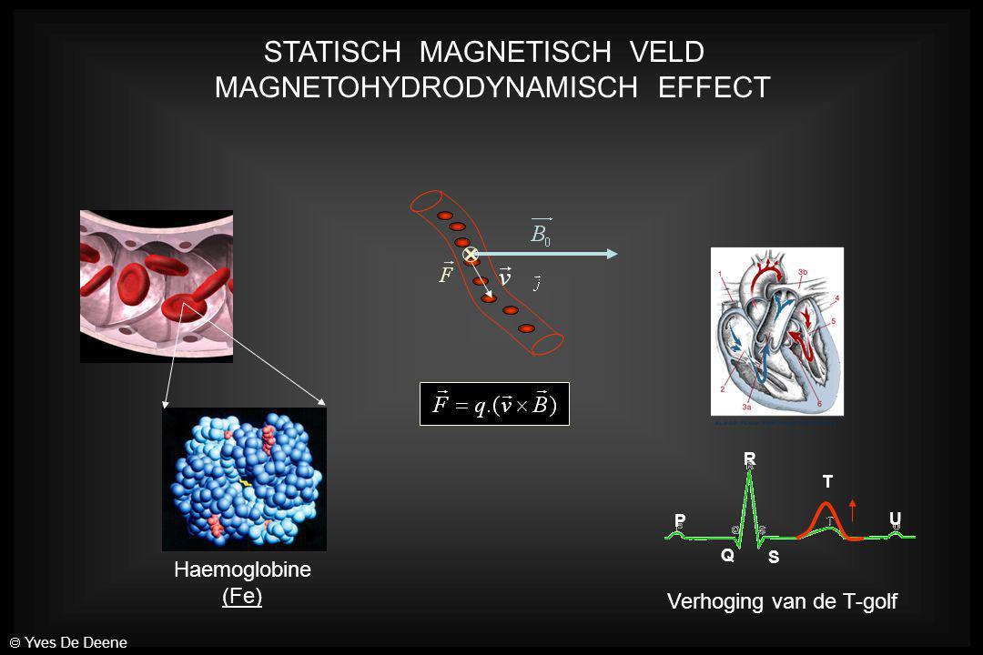 STATISCH MAGNETISCH VELD MAGNETOHYDRODYNAMISCH EFFECT