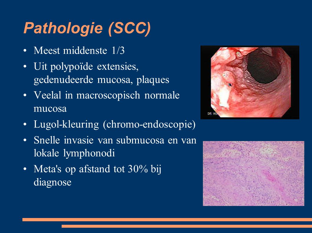 Pathologie (SCC)‏ Meest middenste 1/3
