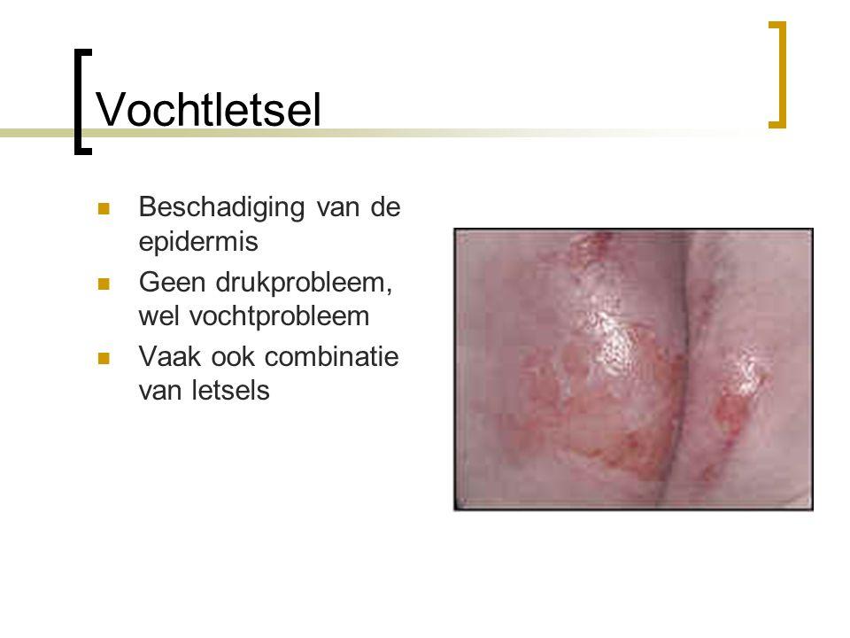 Vochtletsel Beschadiging van de epidermis