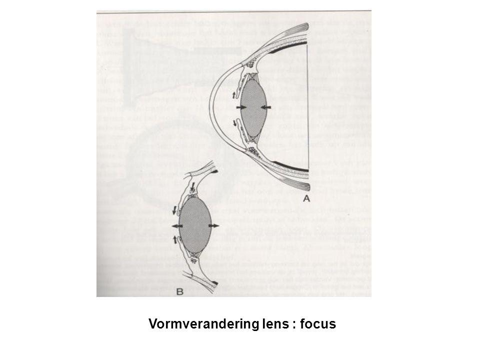 Vormverandering lens : focus