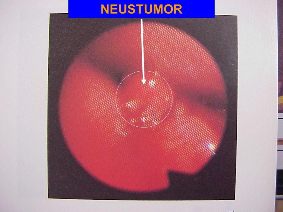 NEUSTUMOR