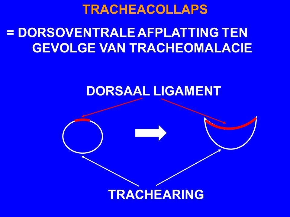 TRACHEACOLLAPS = DORSOVENTRALE AFPLATTING TEN GEVOLGE VAN TRACHEOMALACIE.
