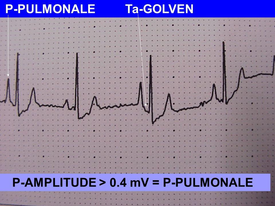 P-AMPLITUDE > 0.4 mV = P-PULMONALE
