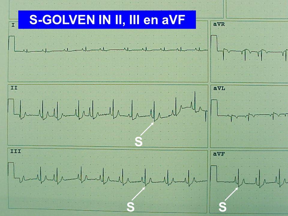 S-GOLVEN IN II, III en aVF