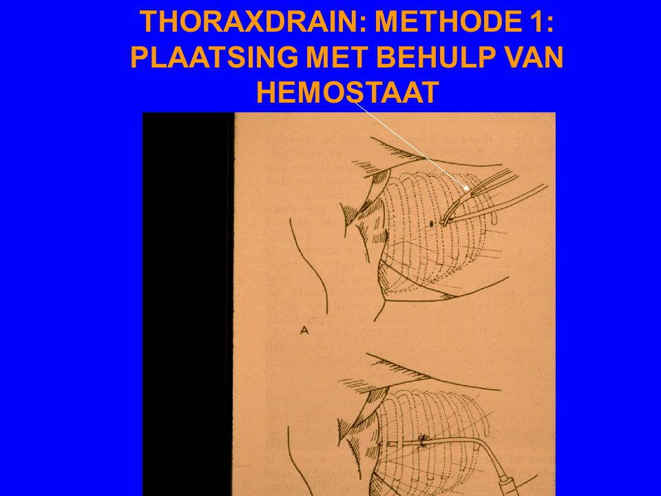 THORAXDRAIN: METHODE 1: PLAATSING MET BEHULP VAN HEMOSTAAT