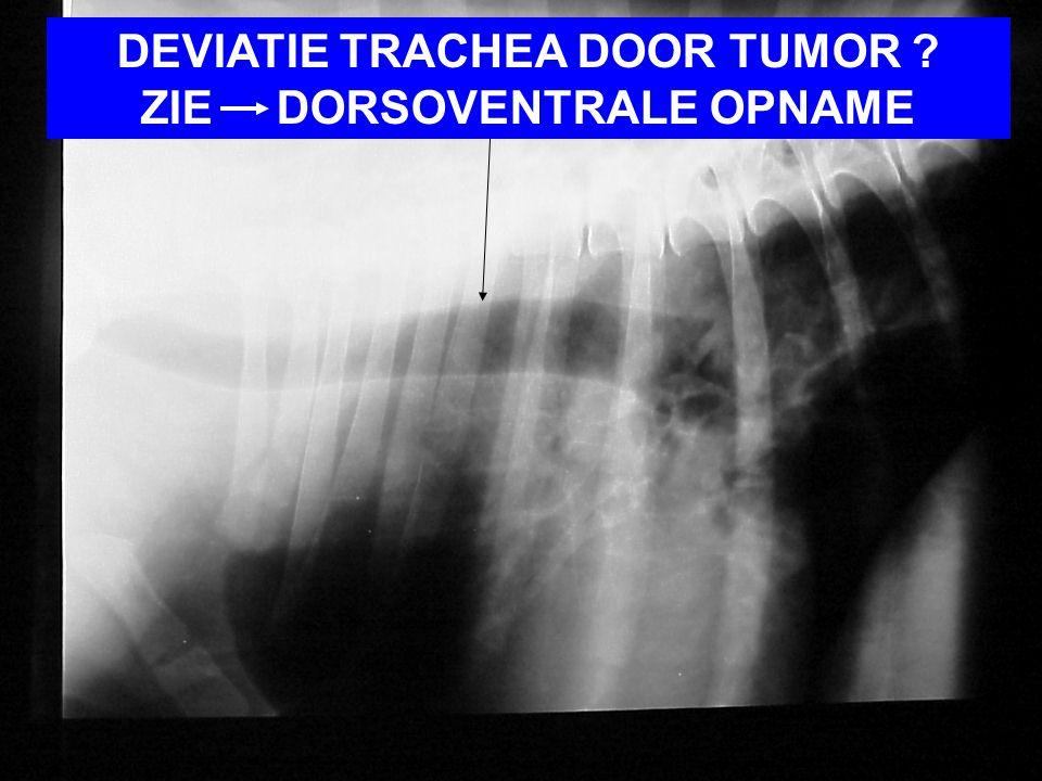 DEVIATIE TRACHEA DOOR TUMOR ZIE DORSOVENTRALE OPNAME