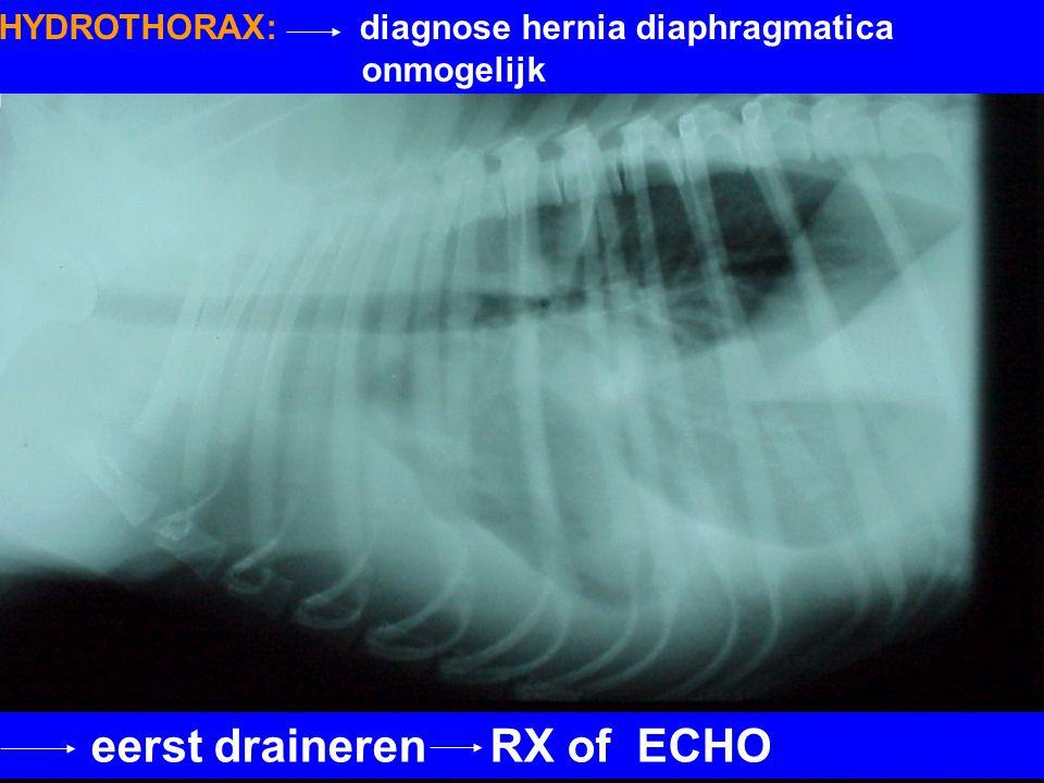 eerst draineren RX of ECHO