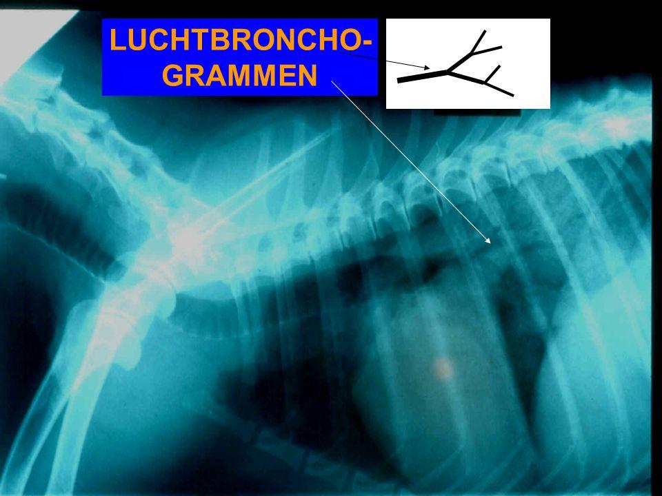 LUCHTBRONCHO-GRAMMEN