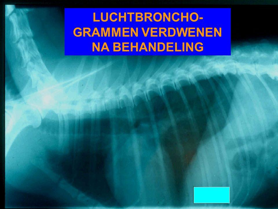 LUCHTBRONCHO-GRAMMEN VERDWENEN NA BEHANDELING