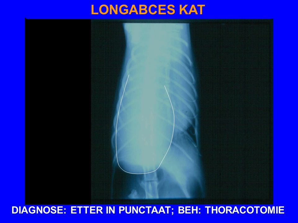 DIAGNOSE: ETTER IN PUNCTAAT; BEH: THORACOTOMIE