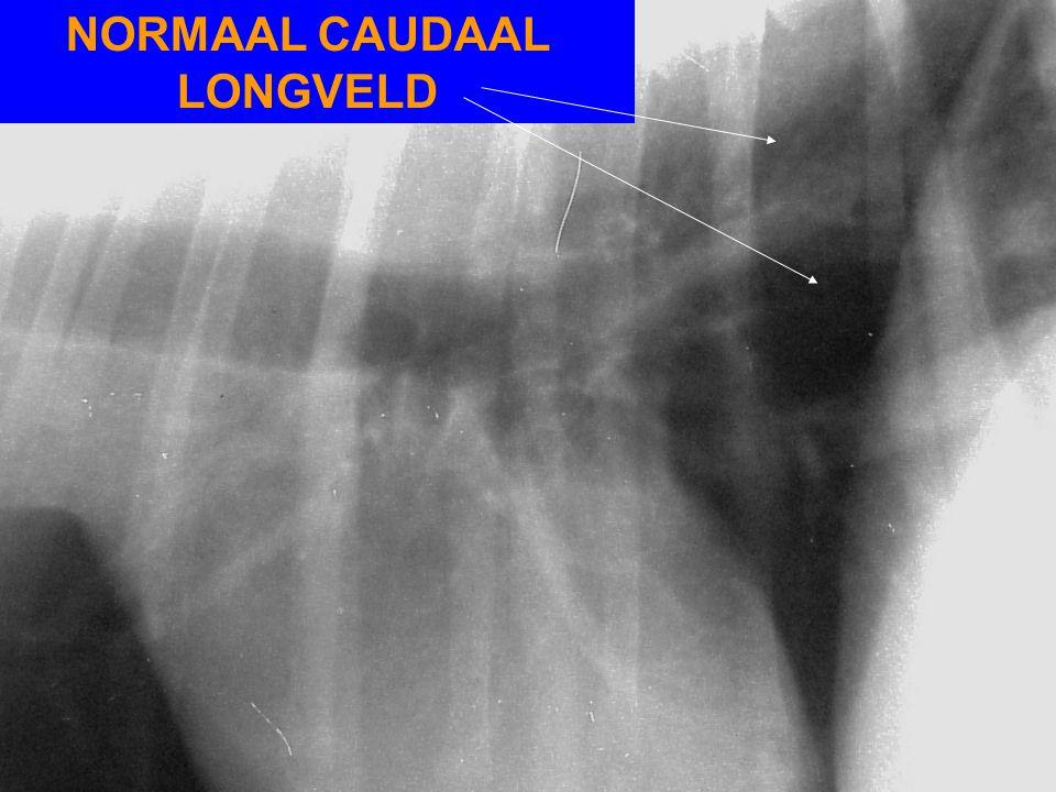 NORMAAL CAUDAAL LONGVELD