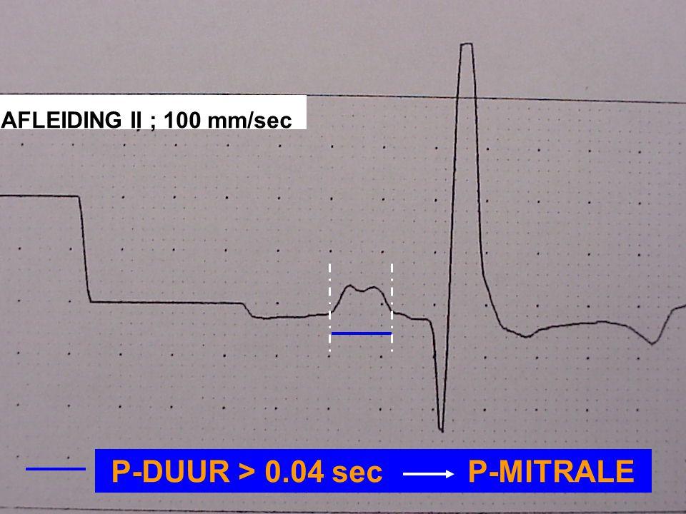 P-DUUR > 0.04 sec P-MITRALE