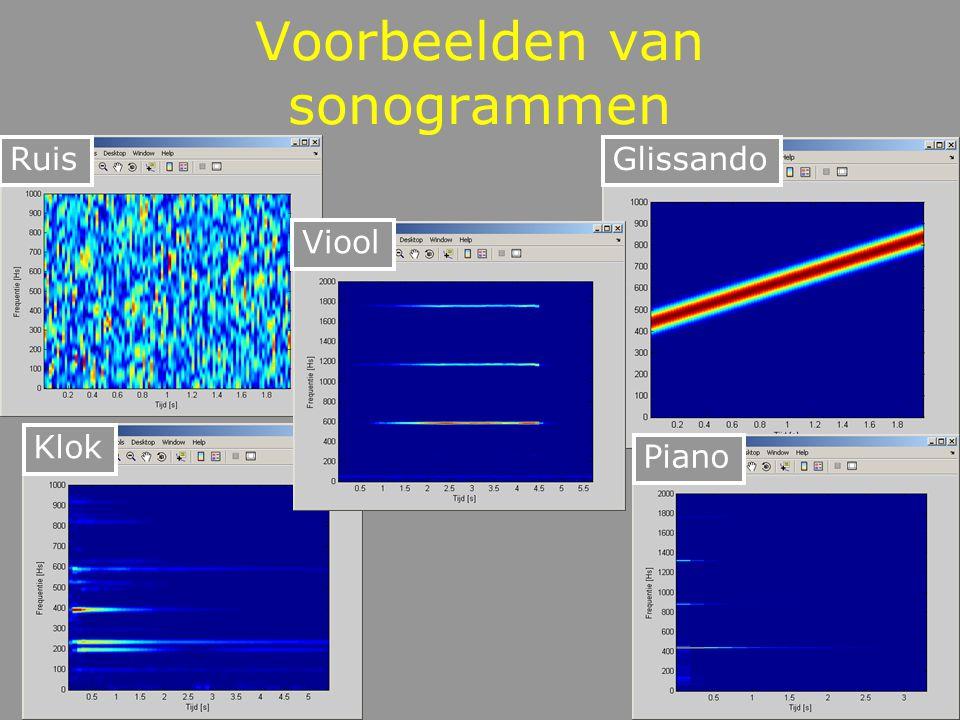Voorbeelden van sonogrammen
