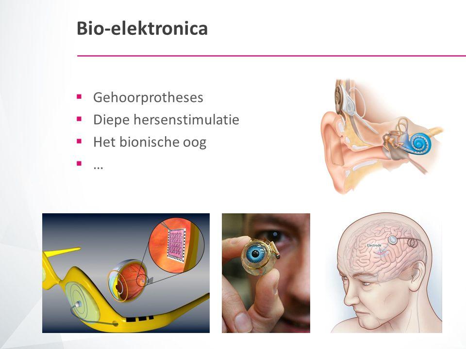 Bio-elektronica Gehoorprotheses Diepe hersenstimulatie