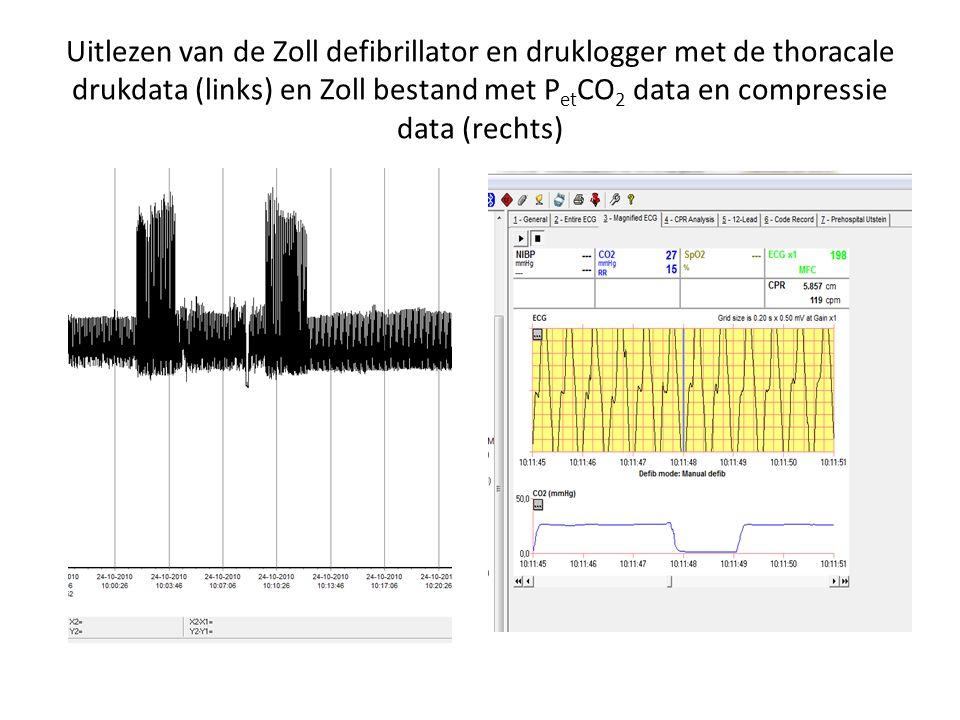 Uitlezen van de Zoll defibrillator en druklogger met de thoracale drukdata (links) en Zoll bestand met PetCO2 data en compressie data (rechts)