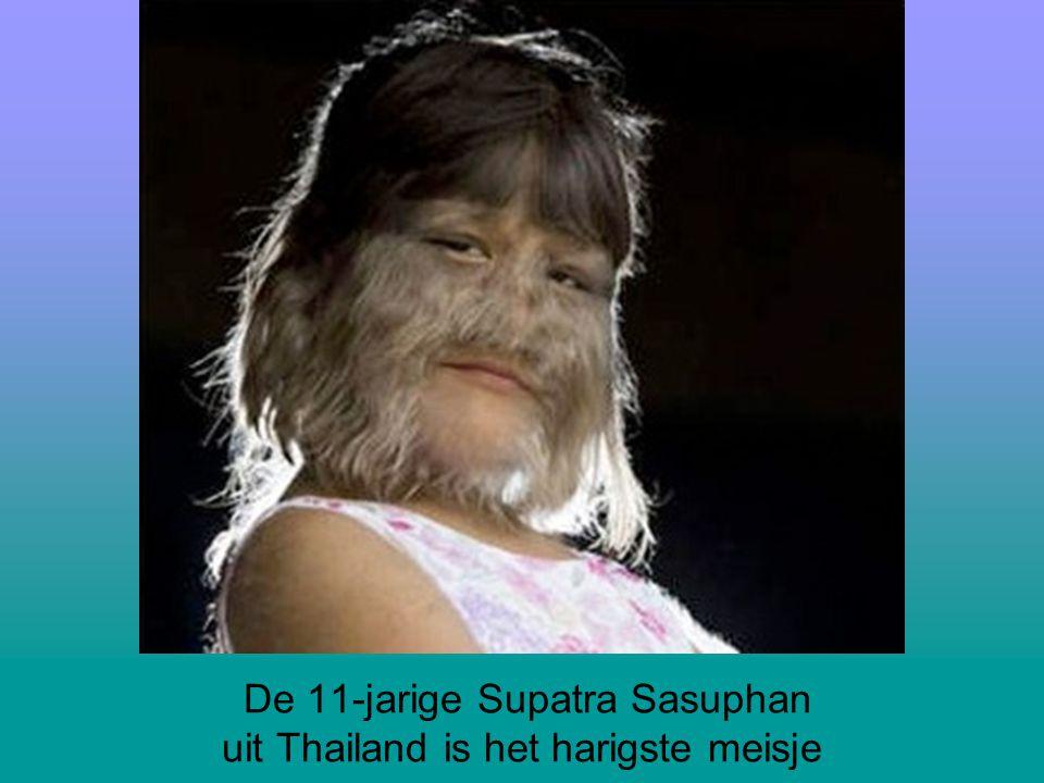 De 11-jarige Supatra Sasuphan uit Thailand is het harigste meisje