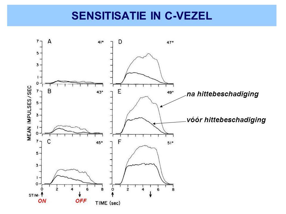 SENSITISATIE IN C-VEZEL