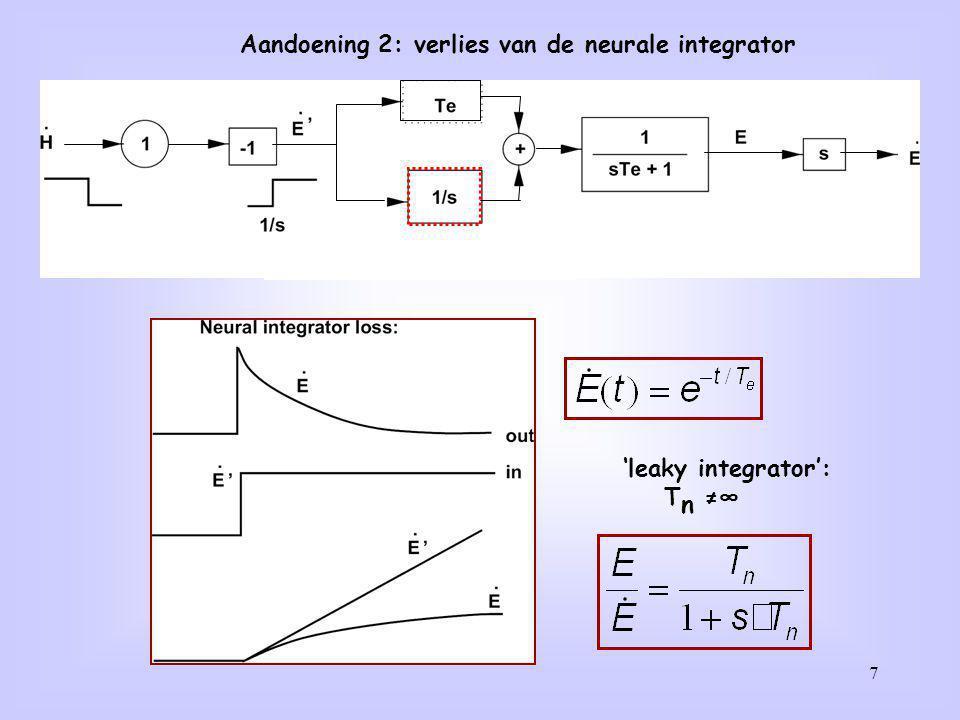 Aandoening 2: verlies van de neurale integrator
