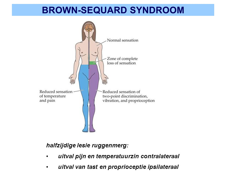 BROWN-SEQUARD SYNDROOM