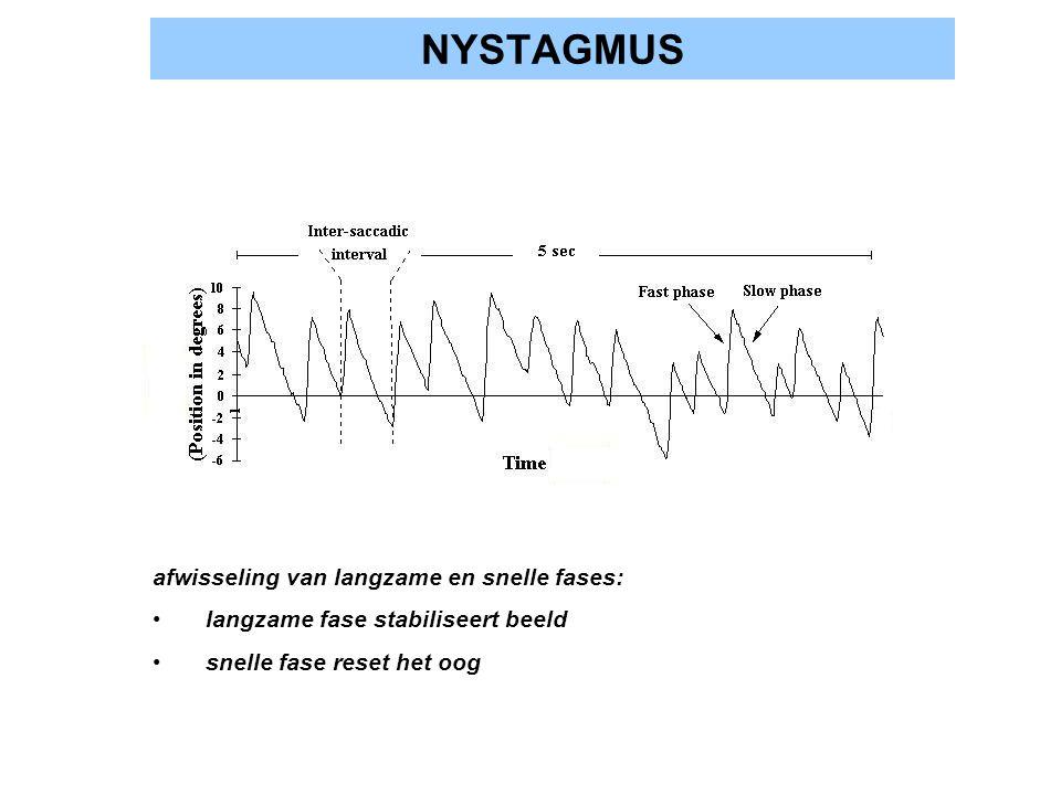 NYSTAGMUS afwisseling van langzame en snelle fases:
