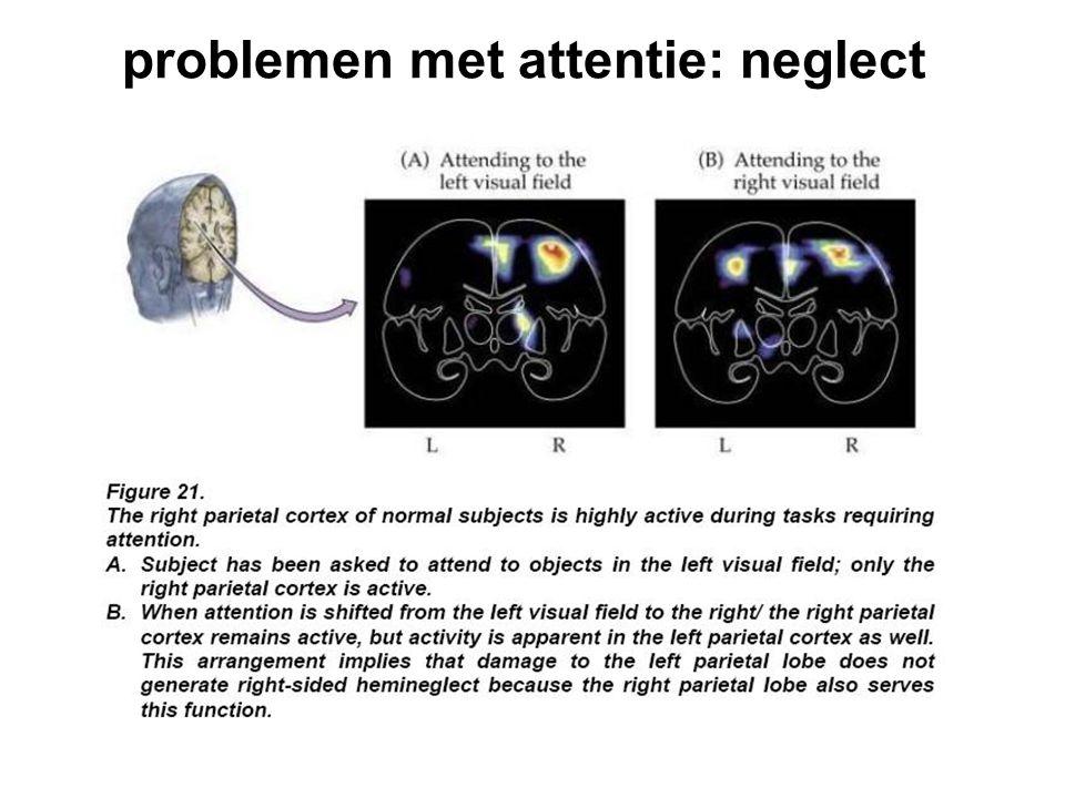 problemen met attentie: neglect