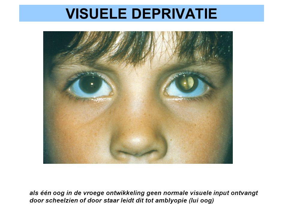 VISUELE DEPRIVATIE