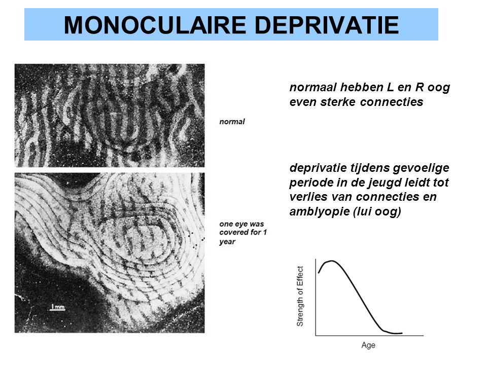 MONOCULAIRE DEPRIVATIE