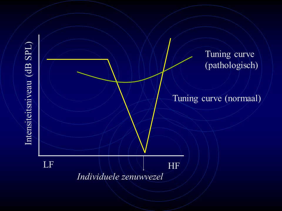 Tuning curve (pathologisch) Intensiteitsniveau (dB SPL) Tuning curve (normaal) LF.