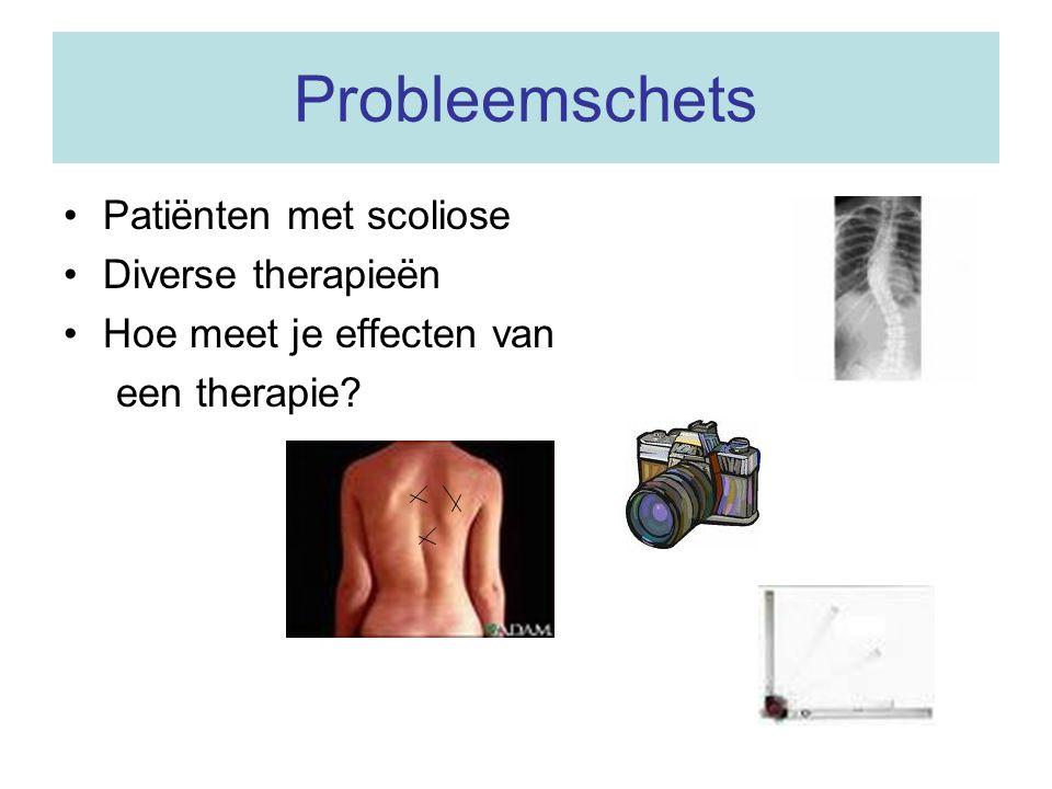 Probleemschets Patiënten met scoliose Diverse therapieën
