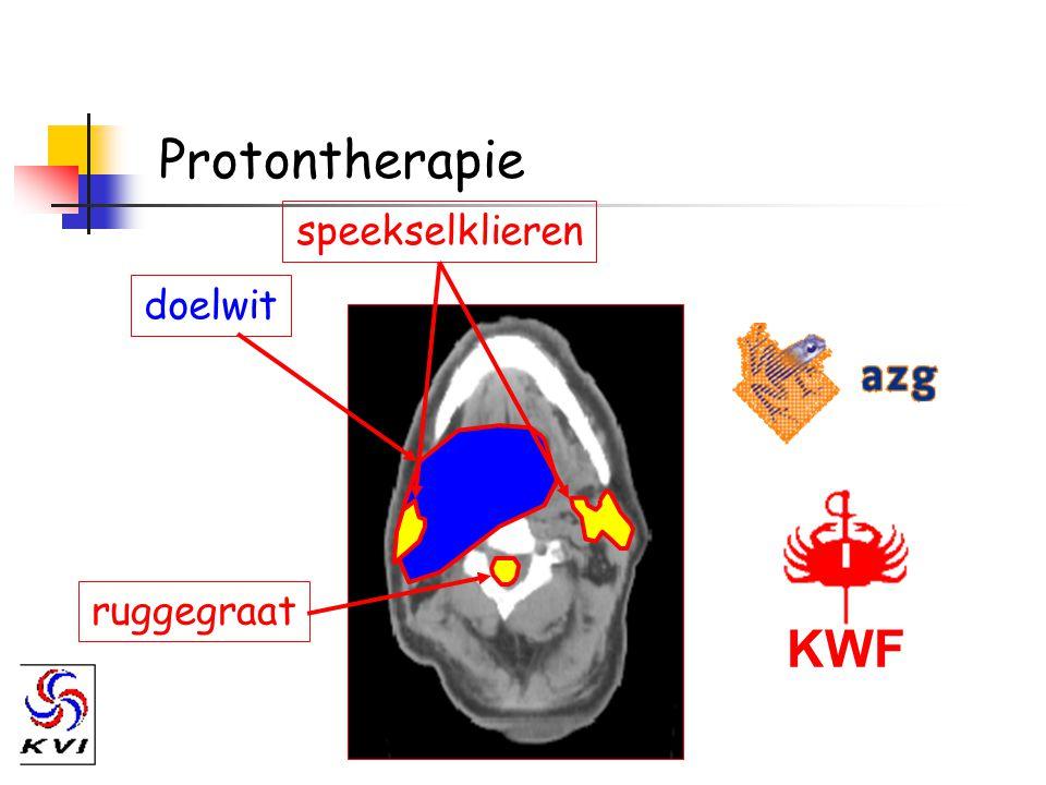 Protontherapie doelwit ruggegraat speekselklieren KWF