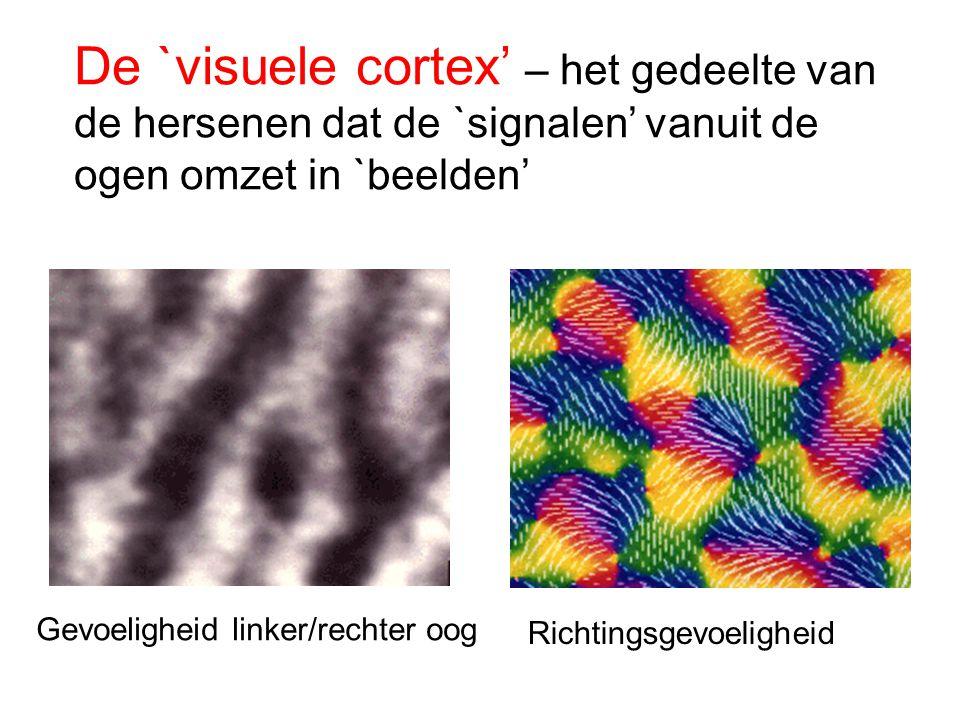 De `visuele cortex' – het gedeelte van de hersenen dat de `signalen' vanuit de ogen omzet in `beelden'