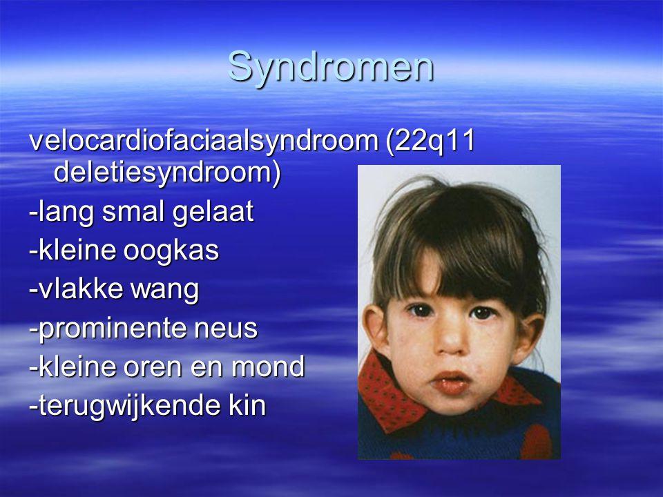 Syndromen velocardiofaciaalsyndroom (22q11 deletiesyndroom)