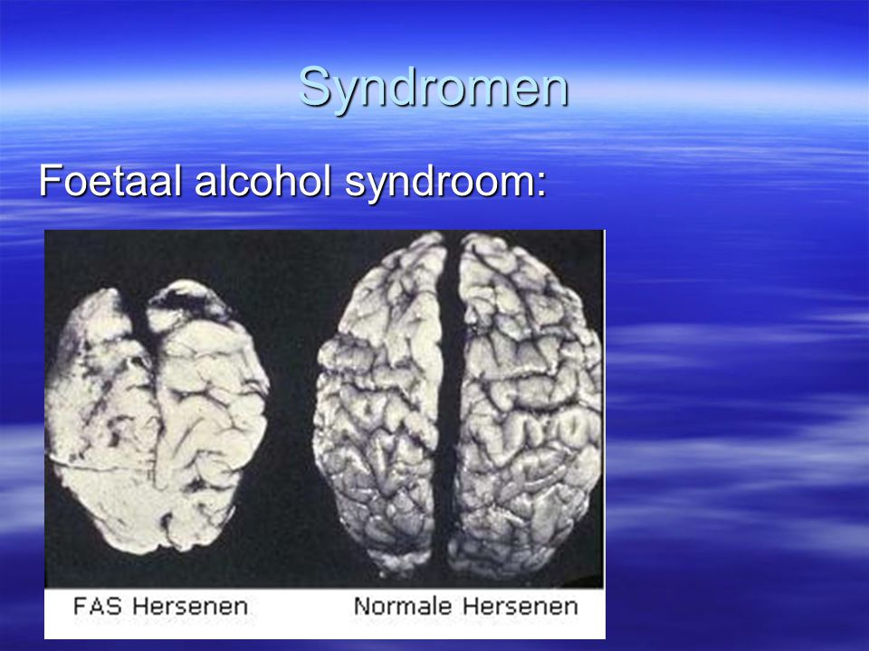 Syndromen Foetaal alcohol syndroom: