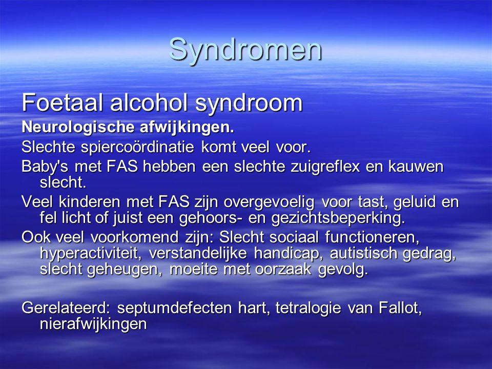 Syndromen Foetaal alcohol syndroom Neurologische afwijkingen.