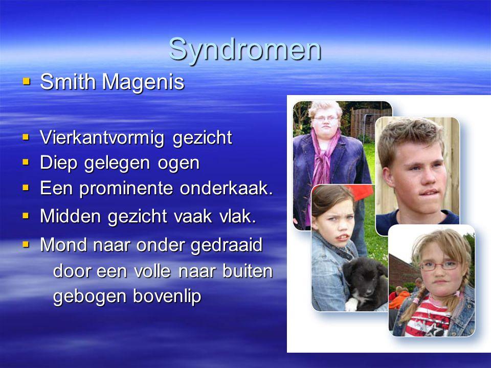 Syndromen Smith Magenis Vierkantvormig gezicht Diep gelegen ogen